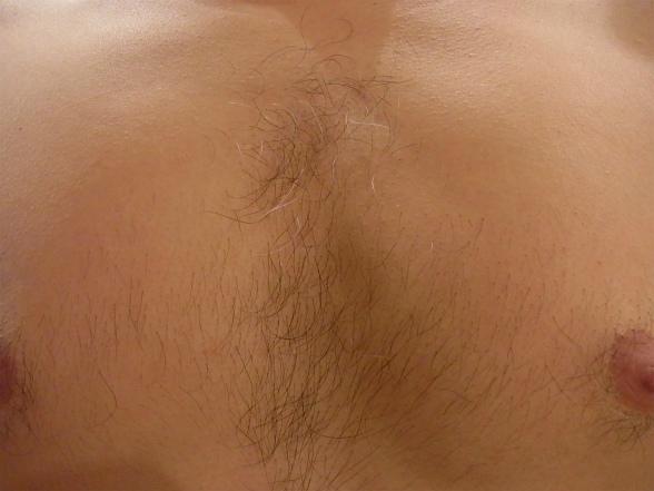 ケノン 産毛